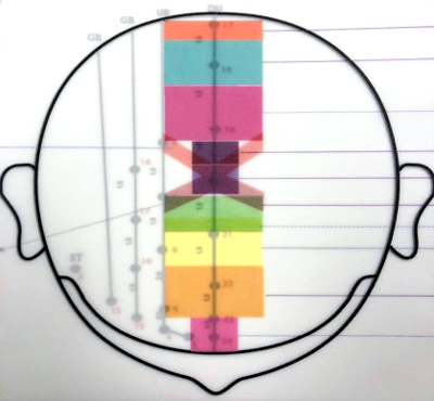 Overview diagram of Neuro Scalp Acupuncture